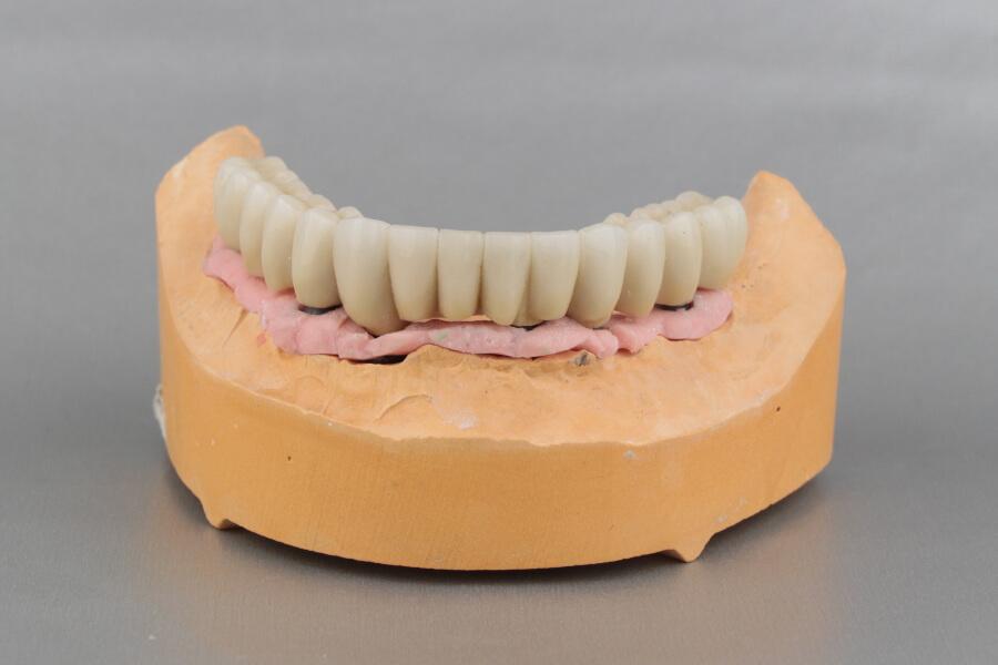 Zahnbrücke auf Implantaten