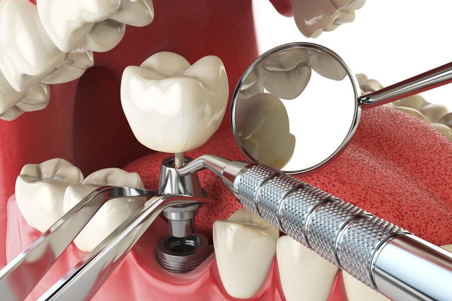 Zahnimplantat 3 Teile